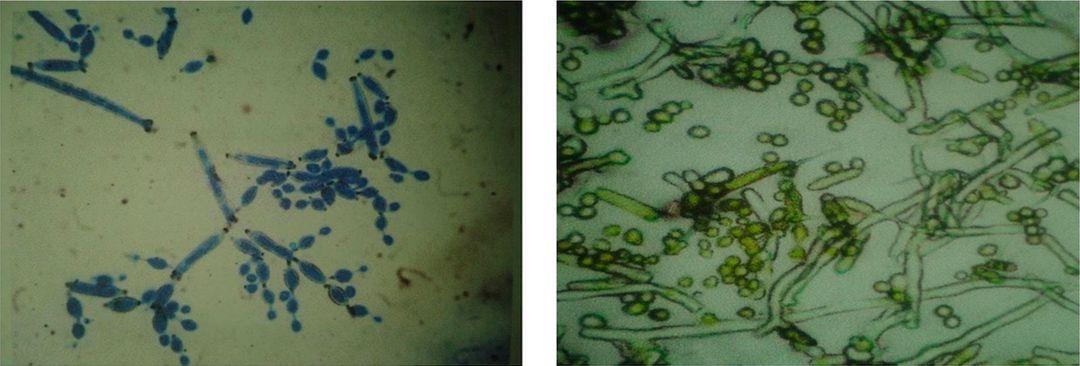 Mikrobiologické rozbory fasád